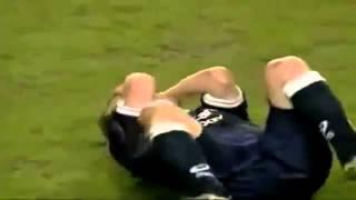Horrific Soccer Injury