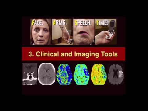 Neuro Imaging:  Adult Stroke – Christopher Hess, MD, PhD