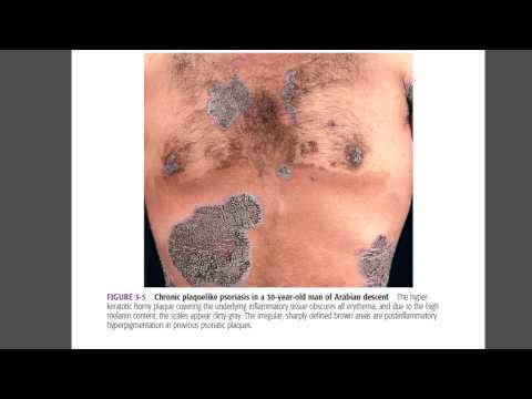 Болезнь псориаз- аудиолекция Neomedicine
