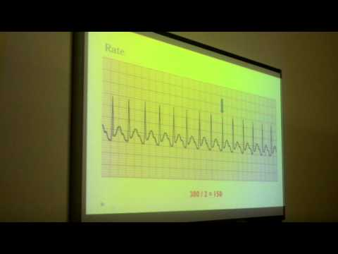 ECG Session | AlFaisal University