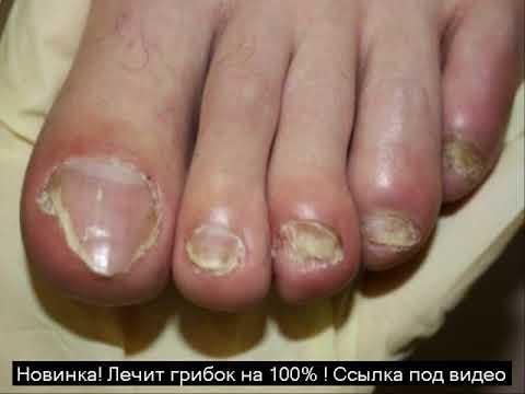 начальная стадия грибка на ногах