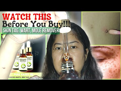 Removal Of Warts, Moles, Etc. | Effective Skin Tag Remover! | Organic Manila Pure Kasoy Oil