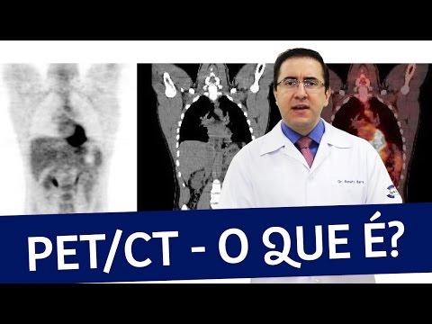 Видео Exame pet ct preço