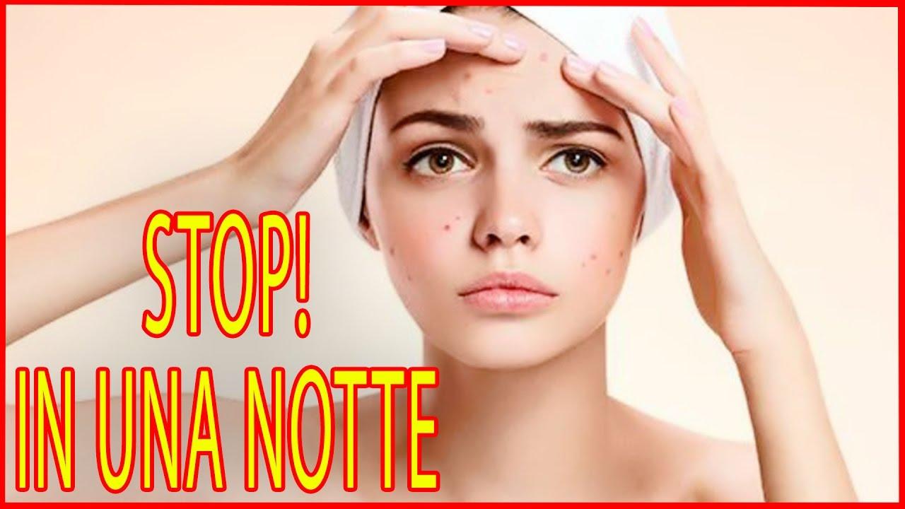 Come eliminare i succhiotti dal collo: 5 pratici rimedi ...