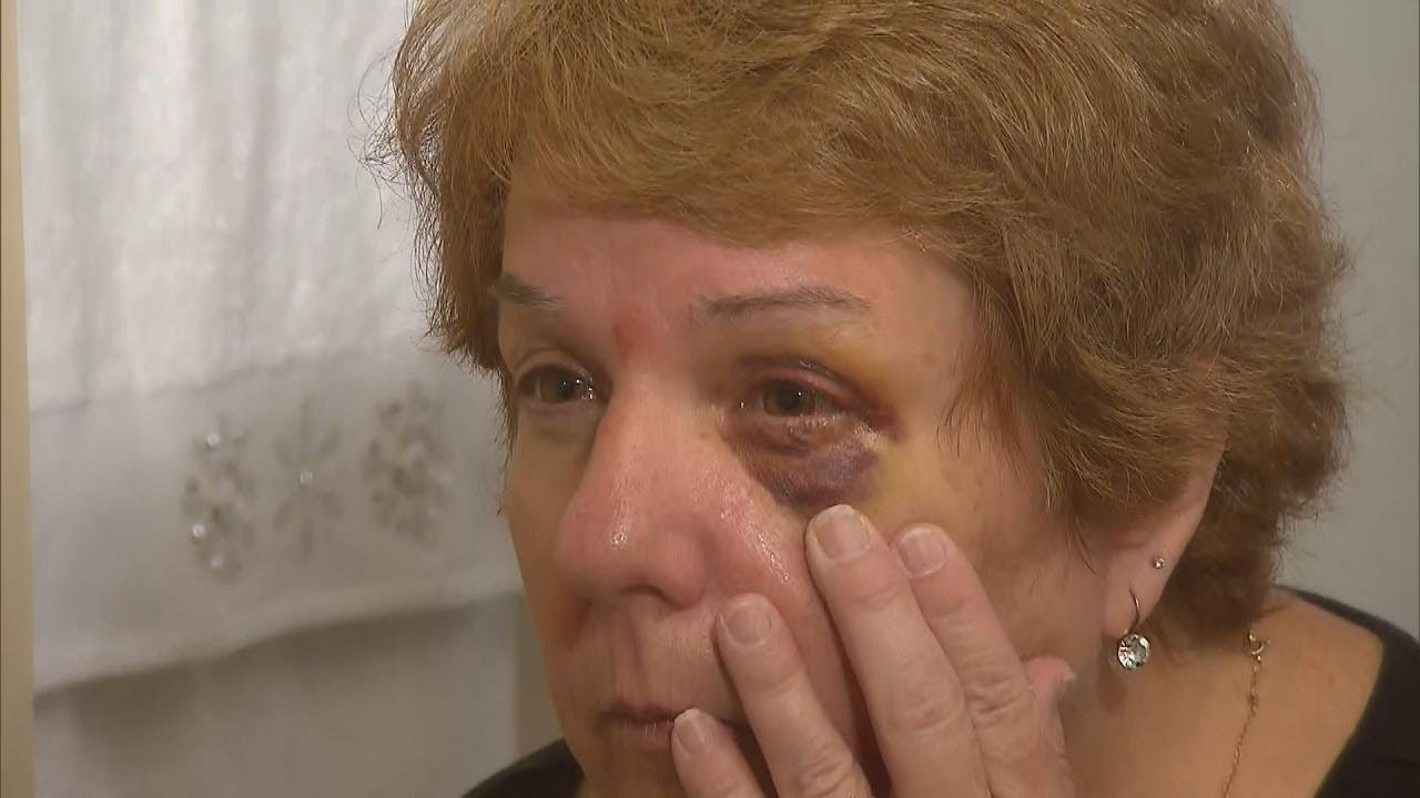 Woman Nurses Black Eye After She's Whacked by Hot Dog at Phillies Game