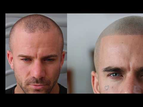 Check Out Some Amazing Scalp Micropigmentation Results From Skalptec 2019