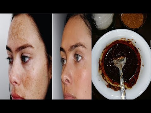 Instant Skin Polishing Secret to Get Milky White Glowing Skin in 15 Minutes Dark Circle, Watch this