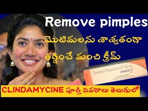 Clindamycine Phosphate Gel Review In Telugu.|| How To Remove Pimples.|| BEST CREAMS FOR PIMPLES.||