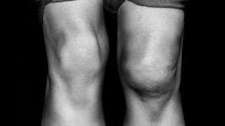 Sob o de inchaço joelho causa