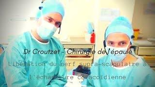 Libération du nerf supra-scapulaire à l'échancrure coracoïdienne