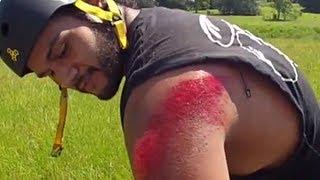 WORST ROAD RASH EVER, Terrible Longboard CRASH, Accident Clermont FL | JOOGSQUAD PPJT thumbnail