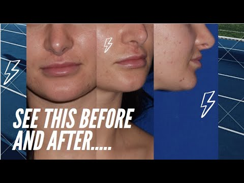 The Most Amazing Lip Transformation - Lip Lift and Chin Lipo (Submental Lipo)