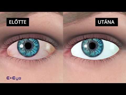 Száraz Szem Kezelés - E-Eye [magyar]