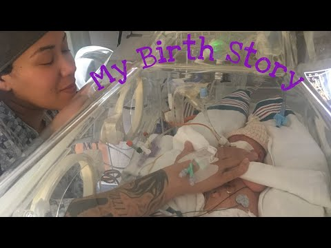 My Birth Story | Trisomy 13 birth story