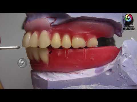 (ПСП 6) Лабораторный этап: Постановка боковой группы зубов.
