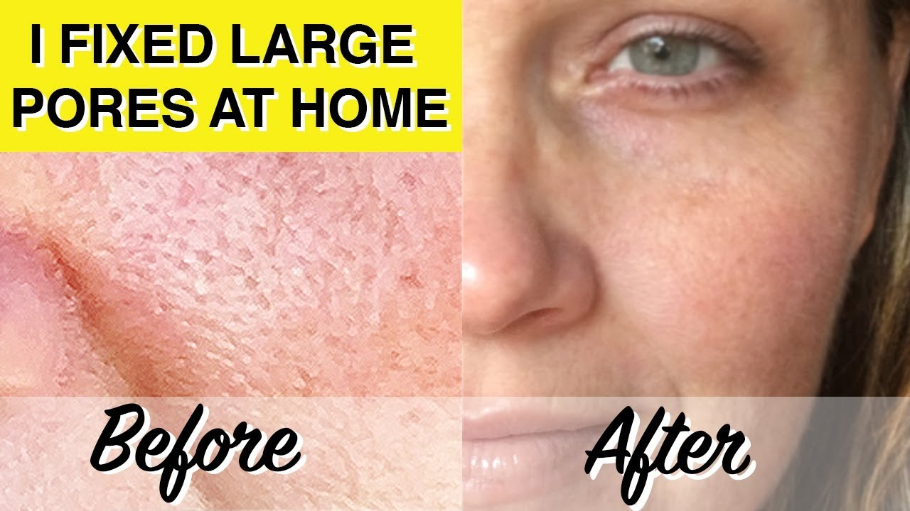 At Home Glycolic Acid Peel Dramatically