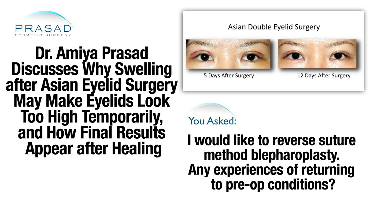 Temporary Swelling after Asian Double Eyelid Surgery, and Reversal ...