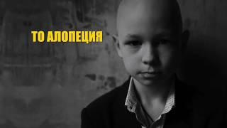 АЛОПЕЦИЯ - ТВОЙ СТИЛЬ!!!