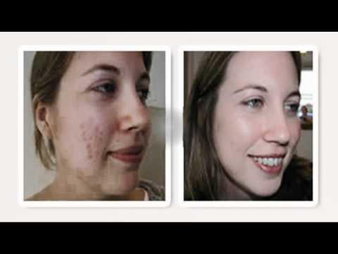 El baño a atopichesky la dermatitis