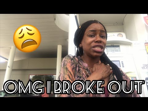 a-week-in-my-life-with-an-allergic-reaction-i-broke-out-in-hives-(vlog-089)-|-uneak-tershai