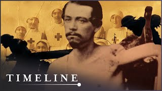The First Amputations (Medical History Documentary) | Timeline