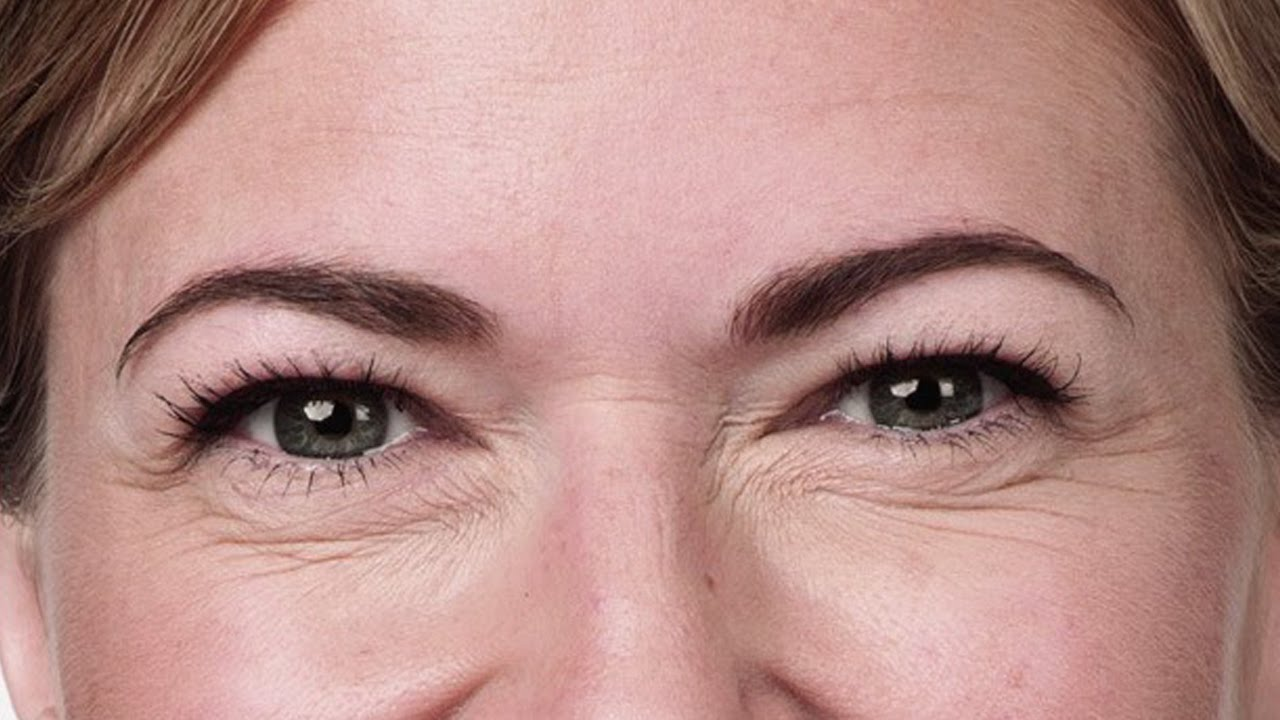 How to Banish Crows Feet images