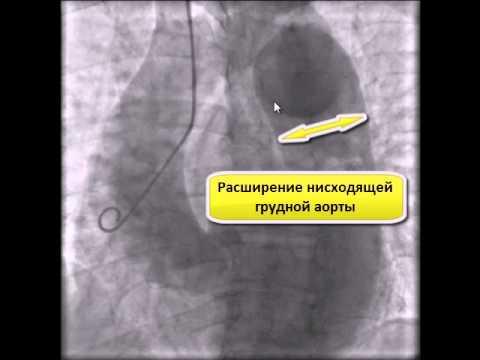 Коарктация аорты - описание, причины, симптомы (признаки