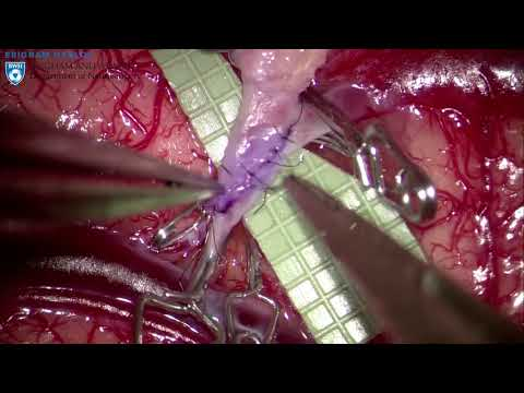 Extracranial-Intracranial Bypass for Moya Moya Disease