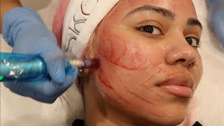 MICRONEEDLING AND CHEMICAL PEEL FACIAL 😱