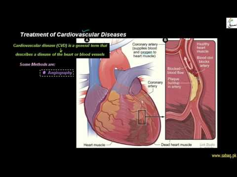 Treatment of Cardiovascular Diseases