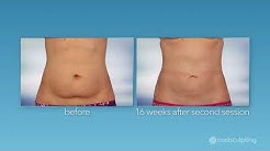 Dr. Clevens | How many CoolSculpting sessions should I have to get the best result?