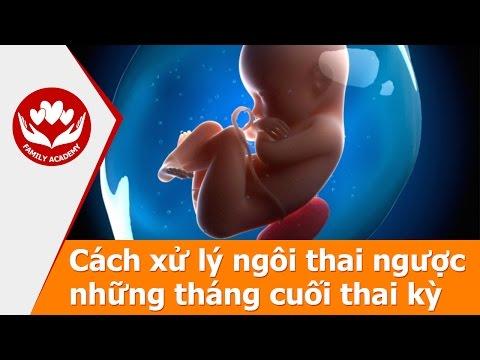 Báo Phụ Nữ VN: Làm gì khi bị chẩn đoán ngôi thai ngược?