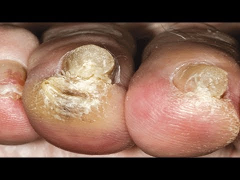 How to Cure Toenail Fungus at Home!