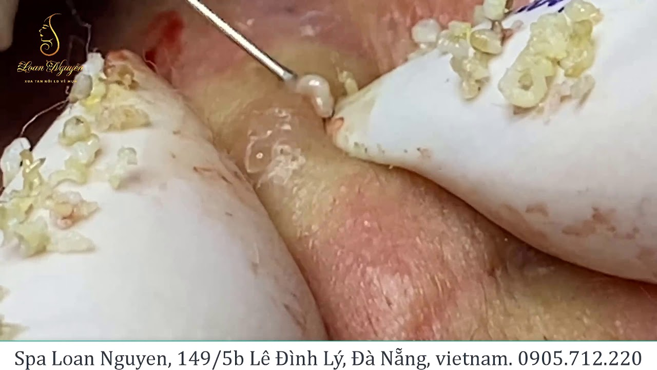 Relax with good videos on getting rid of acne (205) | Loan Nguyen