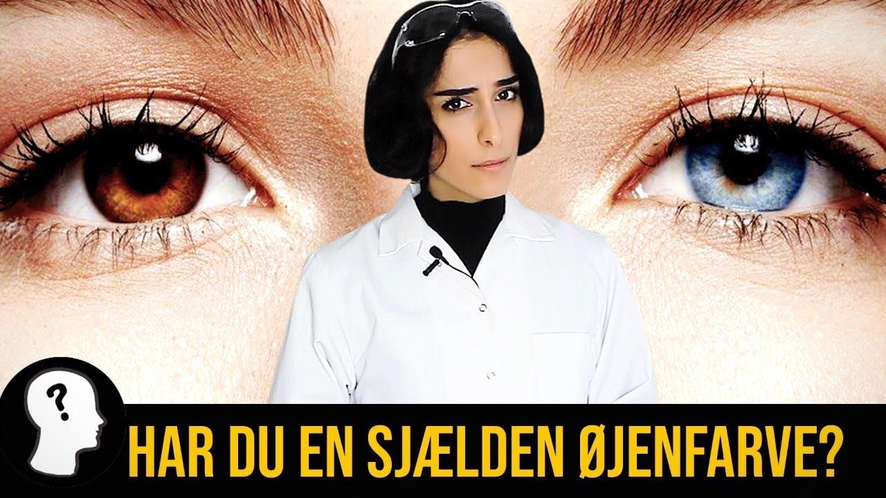 HAR DU EN SJÆLDEN ØJENFARVE?
