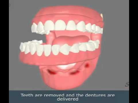 Immediate Dentures - YouTube