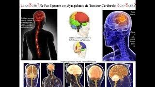 Ne Pas Ignorer ces Symptômes des Tumeurs du Cerveau