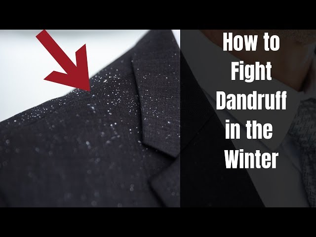 Here is how you can beat dandruff to death