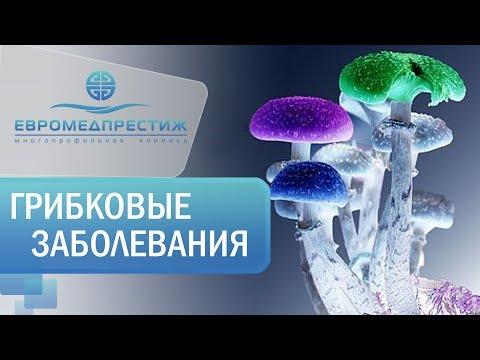 Лечение грибковых заболеваний в клинике ЕВРОМЕДПРЕСТИЖ