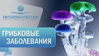 Зварыч Светлана Львовна, врач дерматовенеролог клиники ЕВРОМЕДПРЕСТИЖ о «Грибковых заболеваниях»