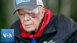 With a bandage above his left eye and large, red welt below it, former president jimmy carter has met cheering crowd while preparing to help build a...