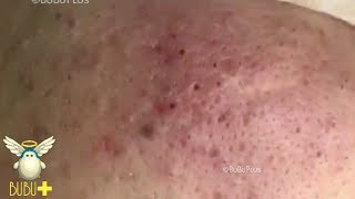 Cystic Acne, Blackheads And Pimples Extraction On Face Acne Treatment 62391!