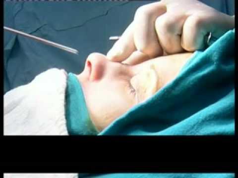 Op.Dr. Eser Aydogdu Burun ameliyatları.mp4