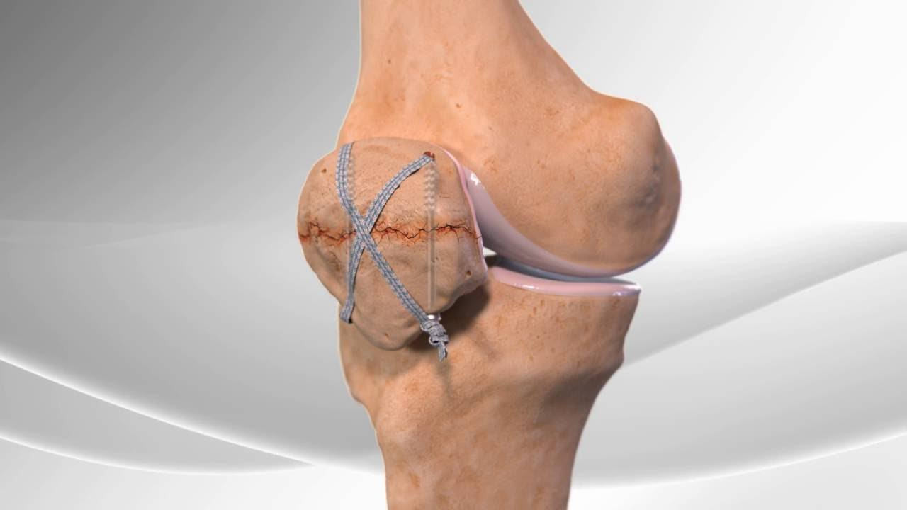 Patella Fracture Repair - YouTube