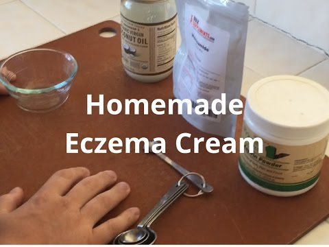 Homemade Eczema Cream