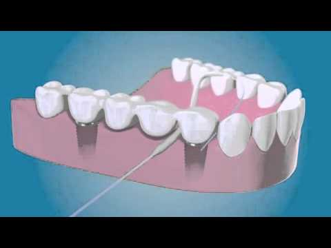 TePe Bridge And Implant Floss   YouTube 360p