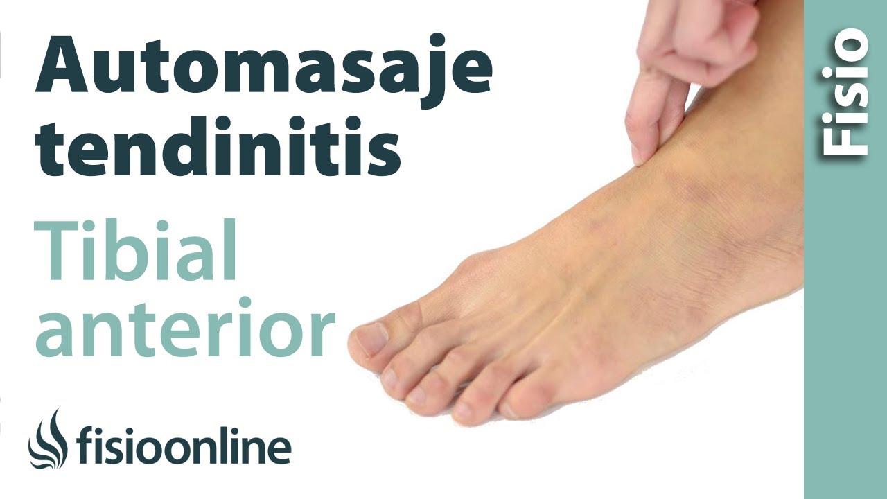 Automasaje para la tendinitis del tibial anterior - YouTube