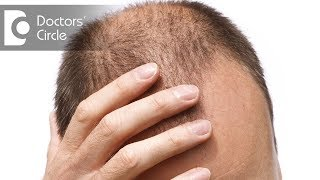Are results of PRP hair loss treatment permanent? - Dr. Rasya Dixit