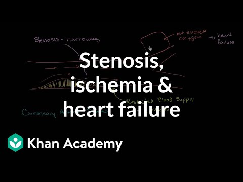 Stenosis, ischemia and heart failure