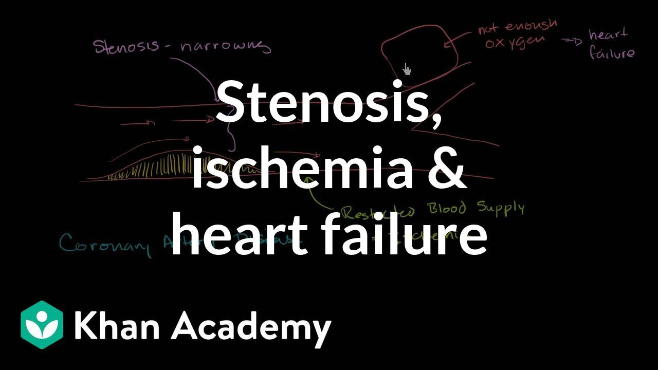 Stenosis, ischemia and heart failure | Miscellaneous | Heatlh & Medicine | Khan Academy